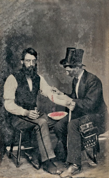Bloodletting in 1860